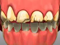 full_mouth_rotation_01