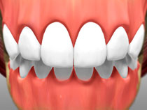 full_mouth_rotation_02