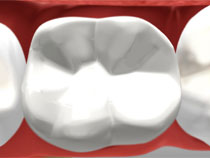 tooth-colored_02